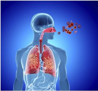 Allergic Rhinitis - Q&A